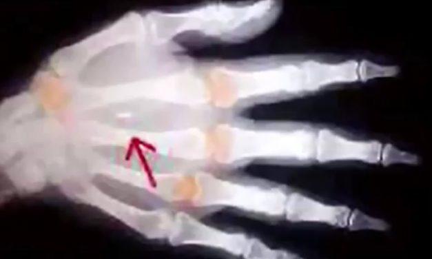 """Pașaportul biometric – încă un pas spre cipuirea finală, pe mână sau pe frunte – Maica Ecaterina Fermo: """"lupta cea mai feroce a diavolului"""""""