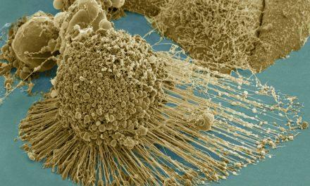 Pentru vaccinul anti Covid-19 se utilizează CELULE CANCEROASE!